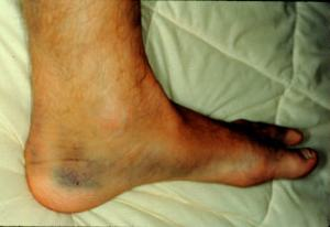 1 foot ankle